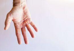 بیماری کف دست یا دوپویترن چیست؟+ 4 درمان خانگی