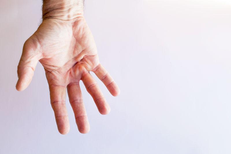 بیماری کف دست یا دوپویترن