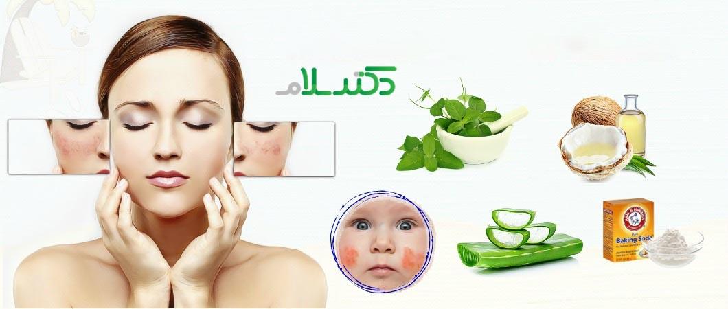 آلرژی پوستی