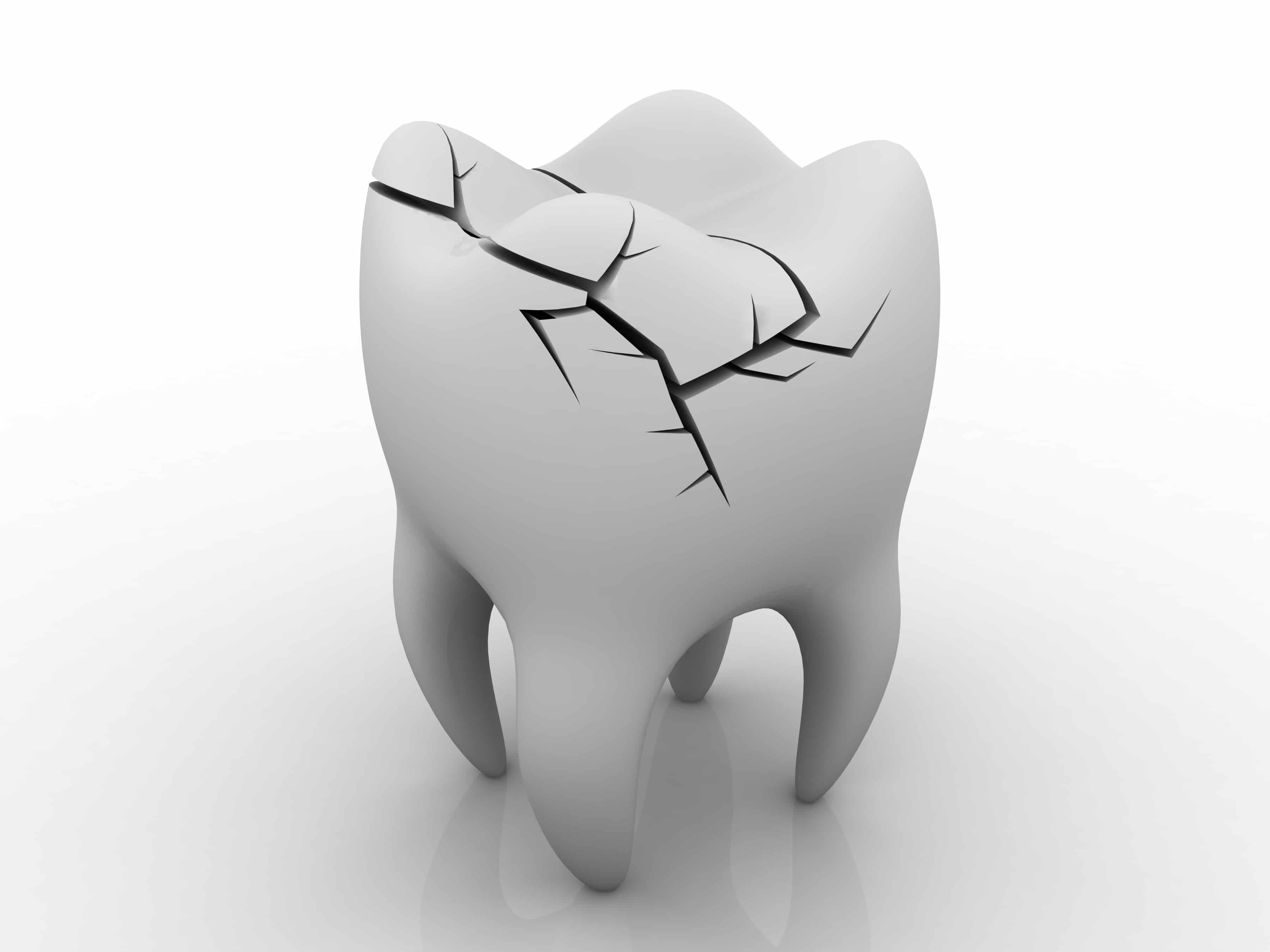 دکتر وحید عارفی : نجات دندانهای شکسته در مقطع لثه توسط عمل های لیزری