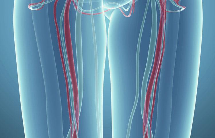اختلال سیاهرگ و ترومبوز عمیق وریدی