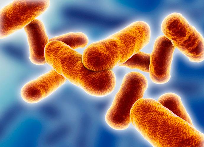 واژینوز باکتریایی