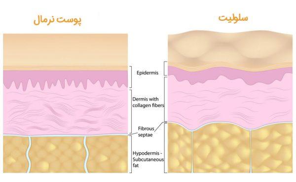 سلولیز