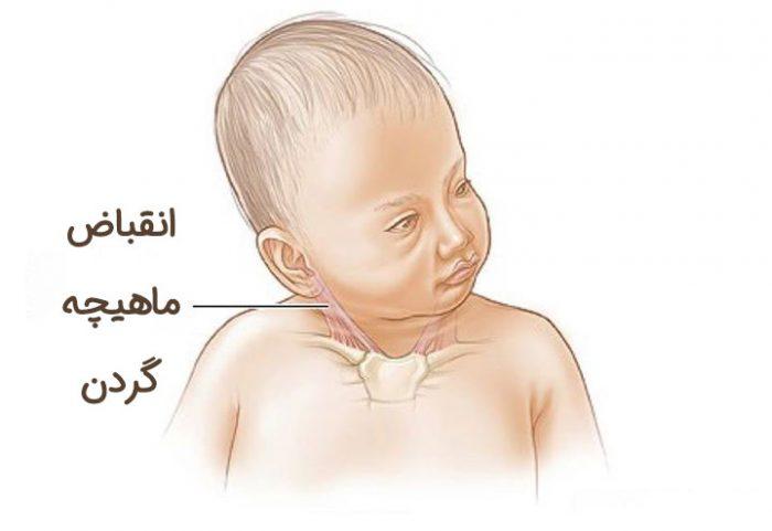 کجی گردن نوزاد