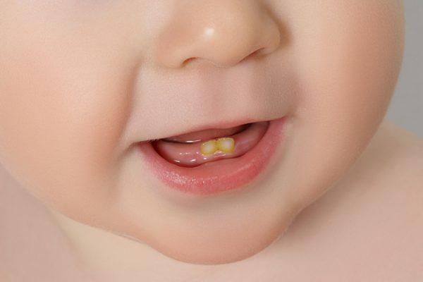 دندان داشتن نوزاد هنگام تولد