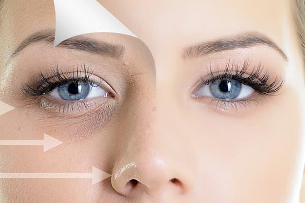تزریقات پرکننده زیر چشم
