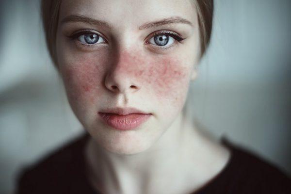 بیماری لوپوس چیست؟ علل، علائم وعوارضتاتشخیصودرمان