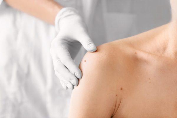 معاینه سرطان پوست