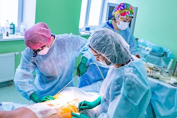 جراحی لیپوساکشن