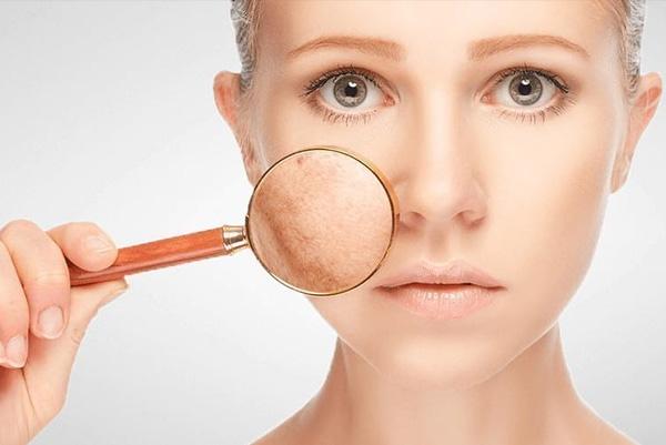 لکه های پوست: علل، اثرات و روش های درمانی