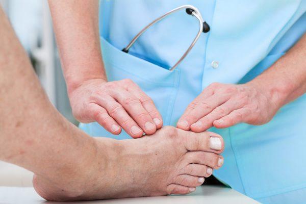 نقرس چیست؟ علائم، علل، تشخیص و راه های درمان بیماری نقرس