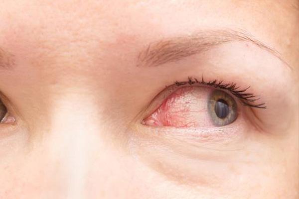 چشم صورتی و عفونت چشمی