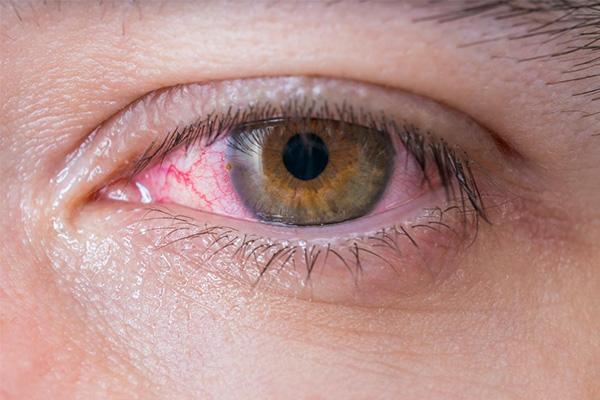 چگونه بیماری چشم صورتی را در منزل درمان کنیم؟