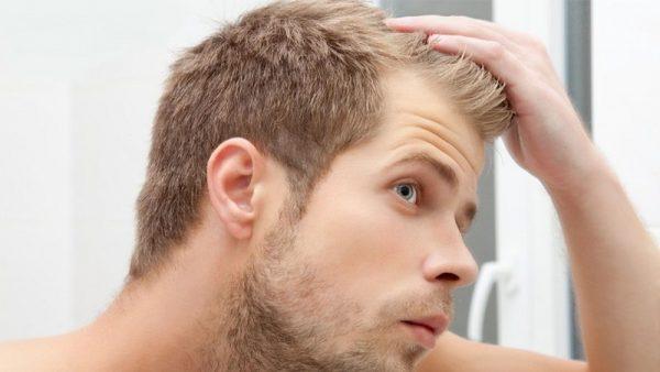 درمان ریزش مو با روش های طبیعی و خانگی