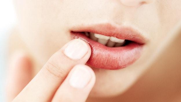 تورم لب؛ علل و راهکارهای درمان تورم لب
