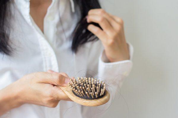 ماینوکسیدیل چیست؟ + درمان ریزش مو با روگین