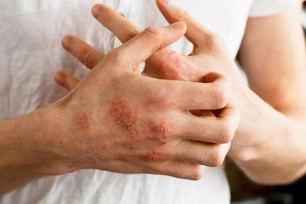 درمان های پسوریازیس و نحوه خلاص شدن از آن