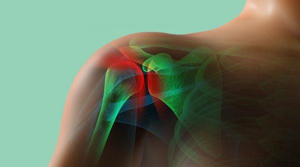 علائم آرتریت یا التهاب مفاصل