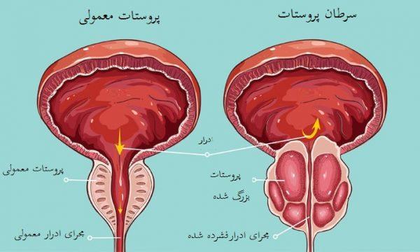 آناتومی پروستات