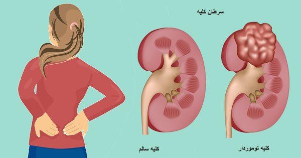انواع سرطان کلیه