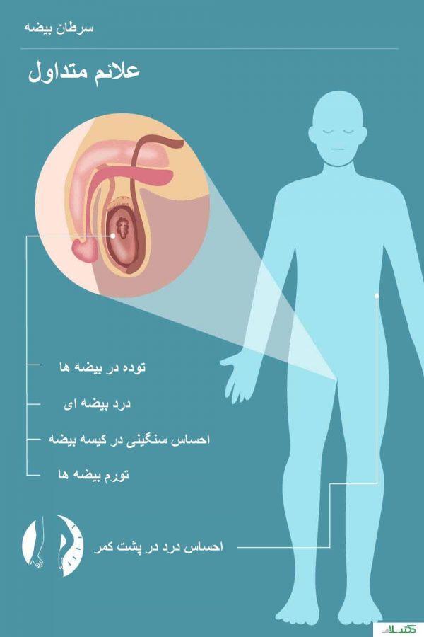 علائم و نشانه های سرطان بیضه