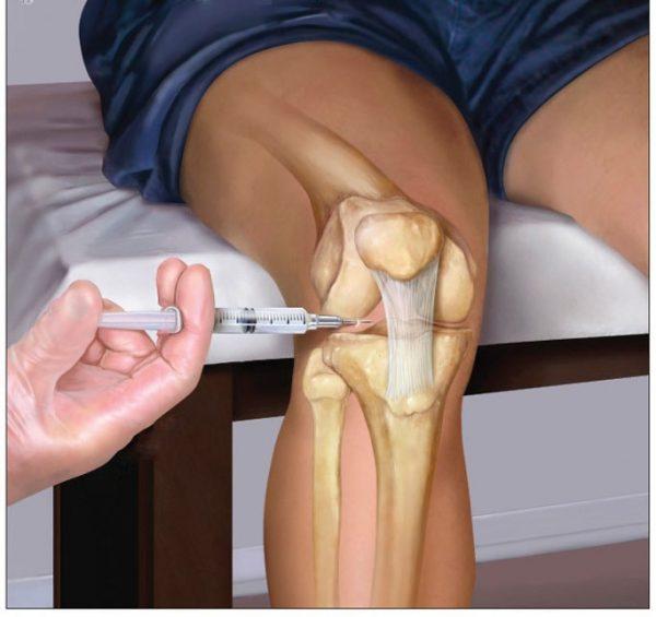 درمان آرتریت یا التهاب مفاصل