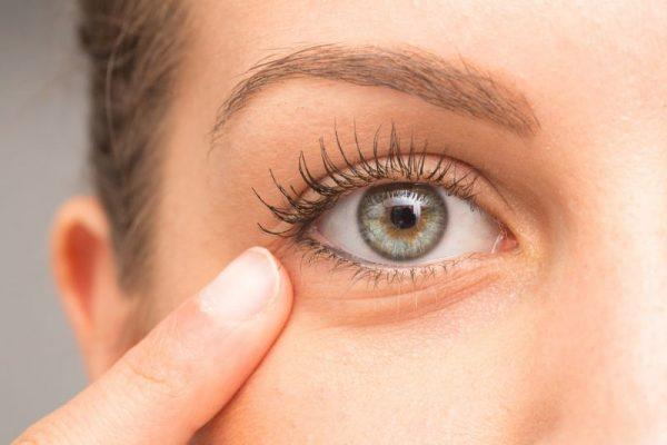 برآمدگی پلک یا شالازیون چیست؟ + درمان خانگی