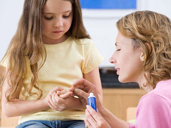 زگیل در کودکان؛ علل، علائم و راه های درمان زگیل در کودکان