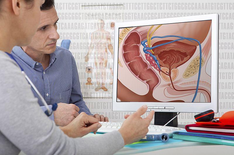 جراحی سرطان پروستات
