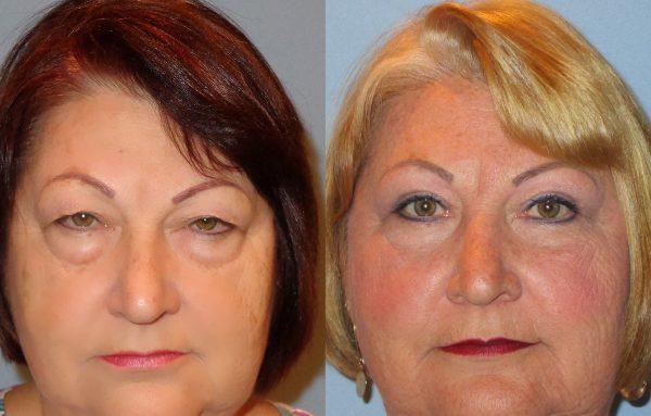 جراحی پلک چشم یا بلفاروپلاستی