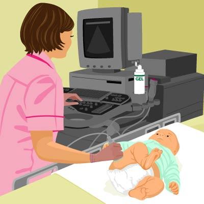 دررفتگی مادرزادی لگن
