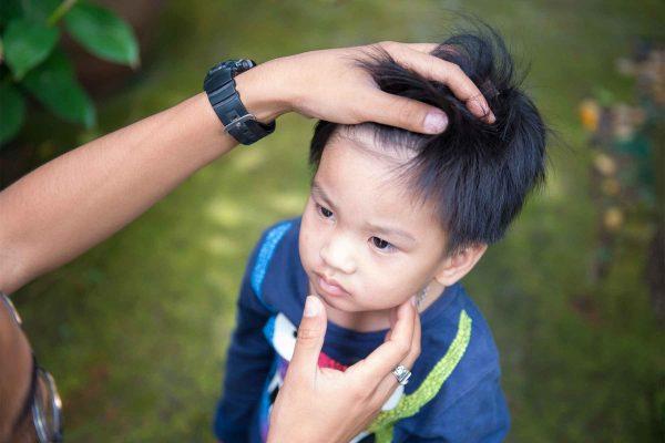 کاشت مو , ریزش مو