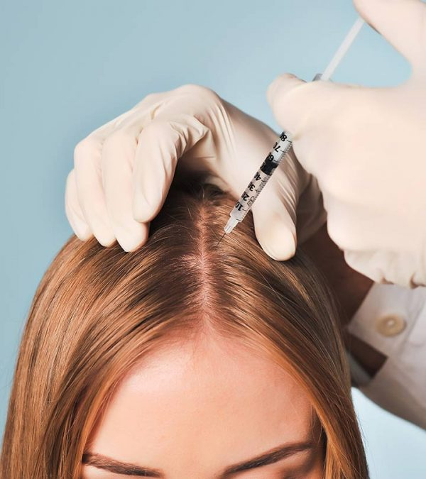 مزوتراپی مو چیست و چه کاربردی دارد؟