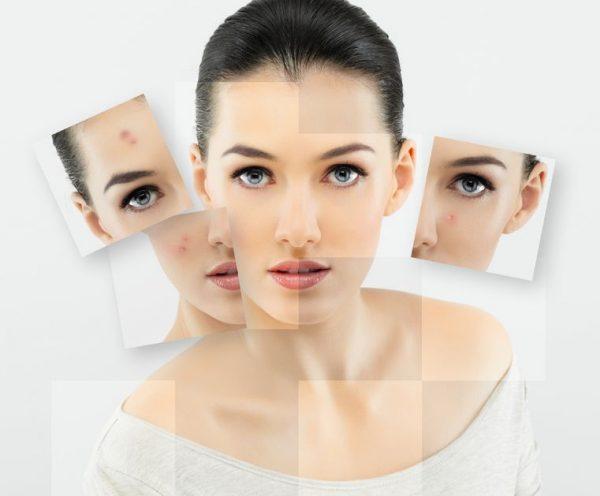 مزونیدلینگ و جوانسازی پوست + مراقبت های پس از آن