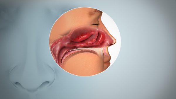 درمان اختلالات بویایی
