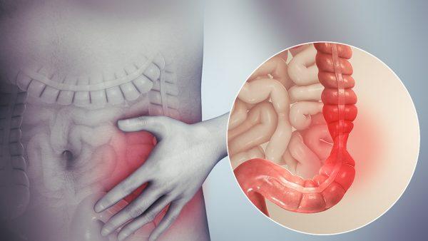 سایکوسوماتیک , سندروم روده تحریک پذیر, بی اشتهایی , پرخوری عصبی