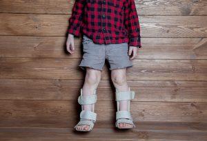 راشیتیسم در کودکان و بزرگسالان؛ علائم، علل و درمان آن