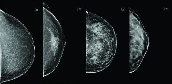 ماموگرافی فول دیجیتال