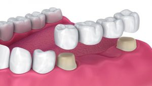 بریج دندان در مقابل ایمپلنت دندان
