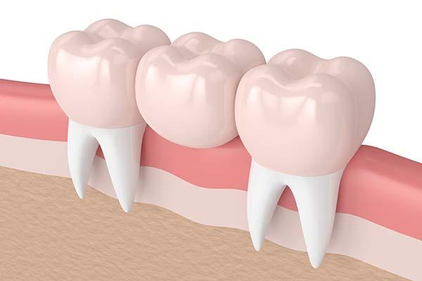 پل های دندانی یا بریج؛ انواع، نحوه انجام و سوالات متداول