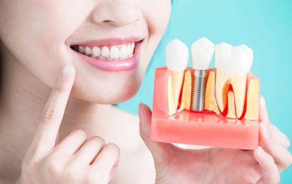 ایمپلنت دندان؛ سی تی اسکن جهت ایمپلنت دندان و mapping