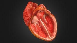 سوراخ قلب