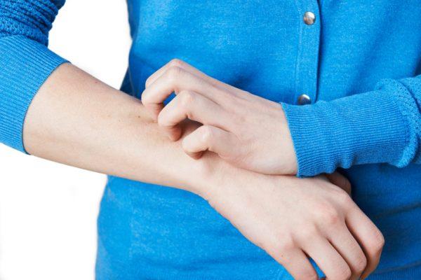 بیماری زونا؛ تشخیص،پیشگیری و درمان بیماری زونا