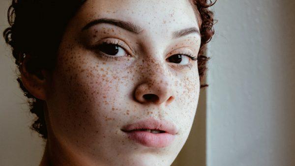 درمان خال و توده های پوستی