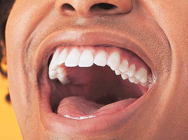 بیماری های دهان