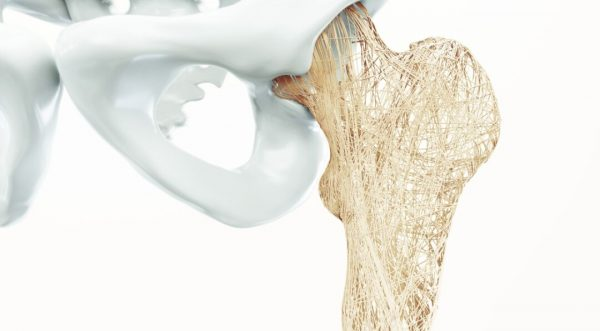 هر آنچه که باید در مورد استئوپروز یا پوکی استخوان بدانید