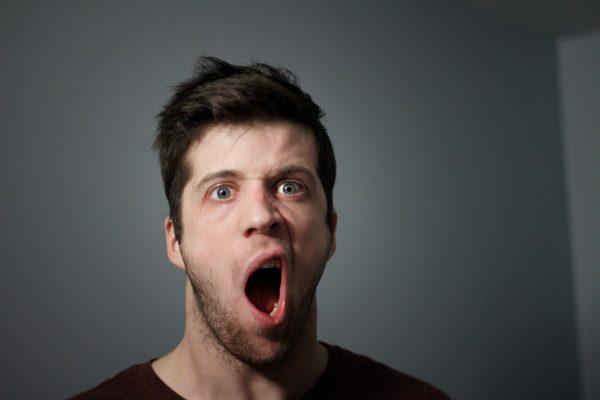 فلج عصب صورت یا فلج بل چیست؟ + علل، علائم و درمان آن
