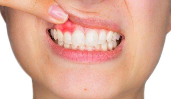 جراحی لیفت لثه چیست؟ + لبخند لثه ای و راه های درمان آن