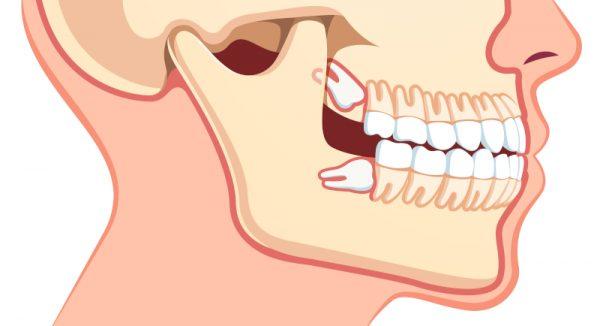 جراحی دندان عقل نهفته عوارض هزینه و مراقبت بعد از جراحی آن