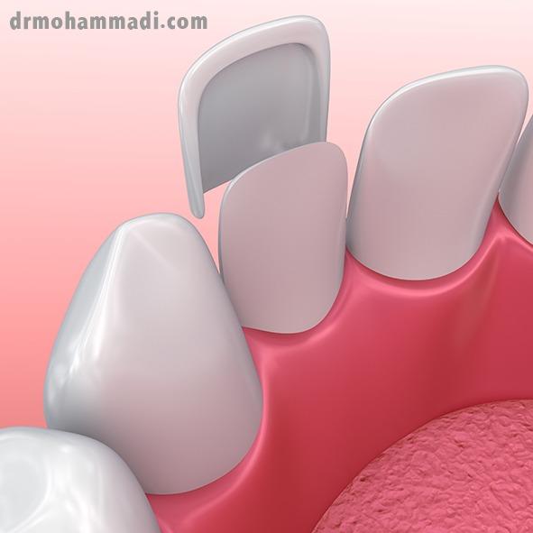 ونیر لمینت دندان یا لیمینت سرامیکی چیست؟